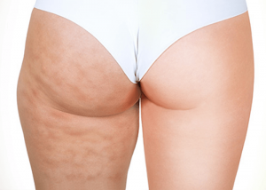 Myths and Facts about cellulite