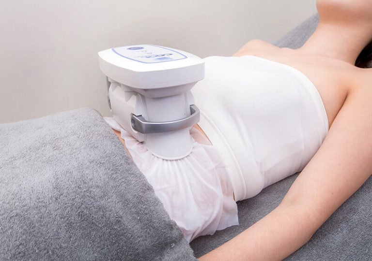 what you need to know about fat freezing