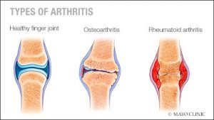Types-of-Arthritis