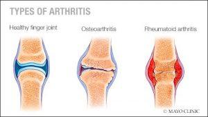 Types-of-Arthritis